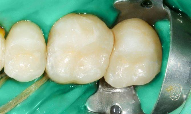 Керамические пломбы на вылеченных зубах