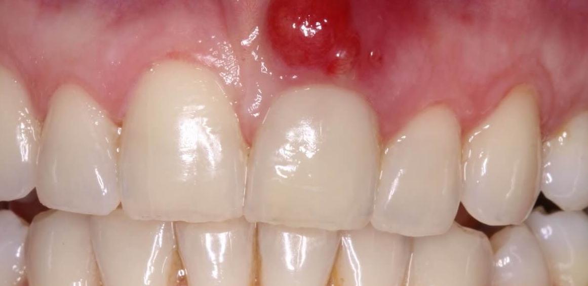 Чем лечить кисту зуба в домашних условиях? Рецепты народных 97