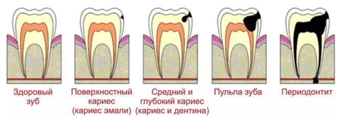 Классификация заболеваний зубов