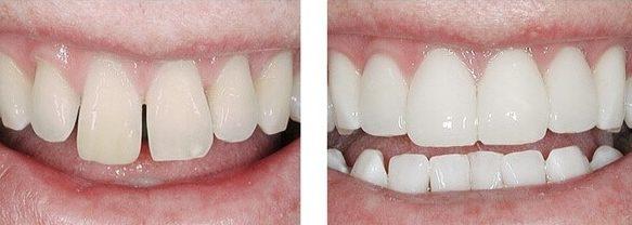 Композитные накладки (виниры) на зубы