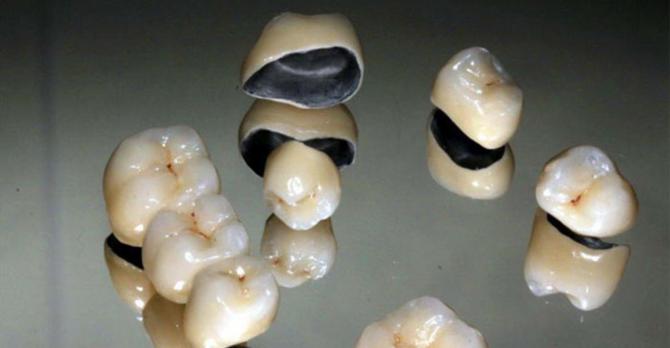 Коронка на зуб из металлокерамики