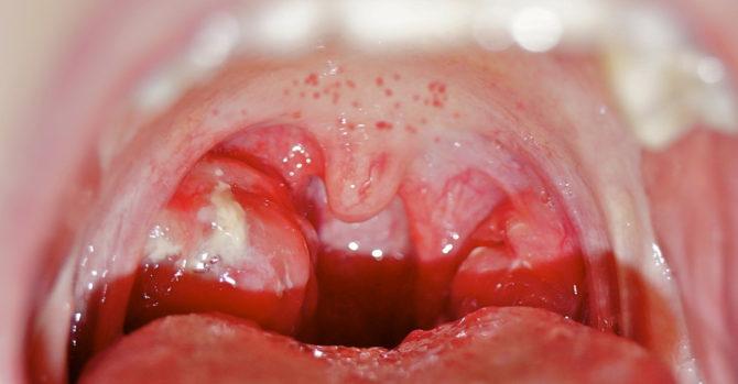 Красная сыпь во рту