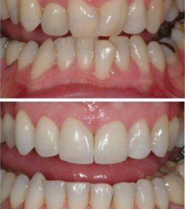 Кривые зубы до и после выпрямления