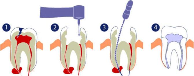 Лечение кисты на верхушке корня зуба