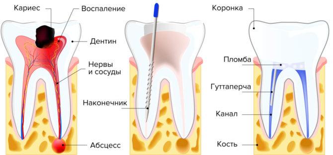 Лечение пульпита методом витальной экстирпации