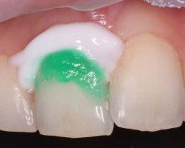Лечение зубов по системе ICON
