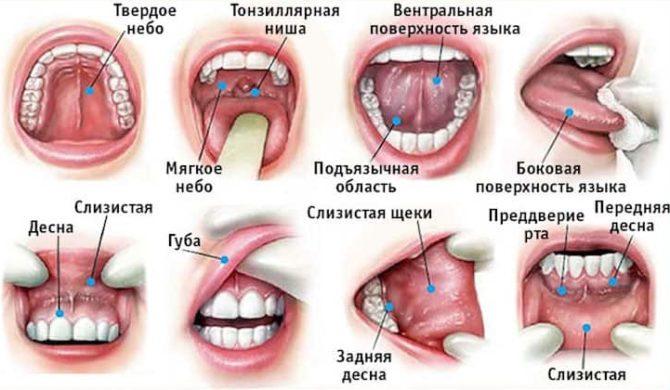 Локализация рака в полости рта