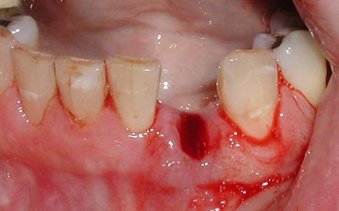 Что нельзя есть после удаления зуба