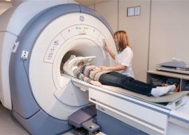 МРТ тройничного нерва