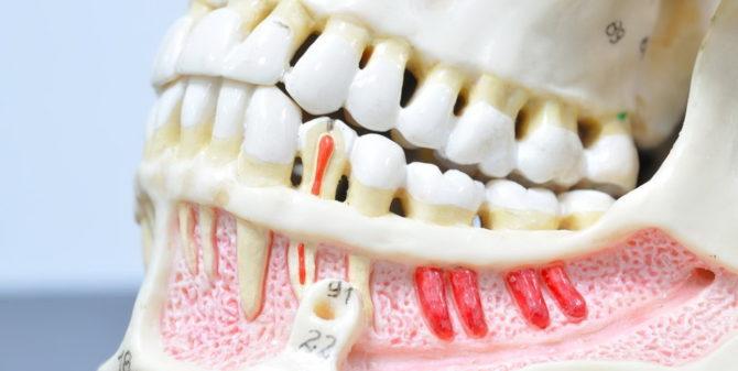Макет больных и здоровых зубов
