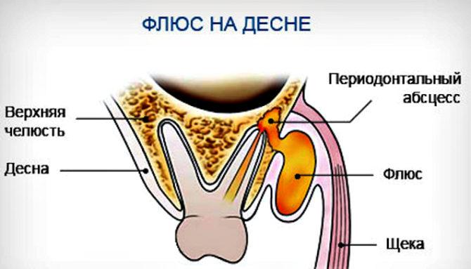 Народные средства от зубной боли с быстрым эффектом, как снять зубную боль в домашних условиях
