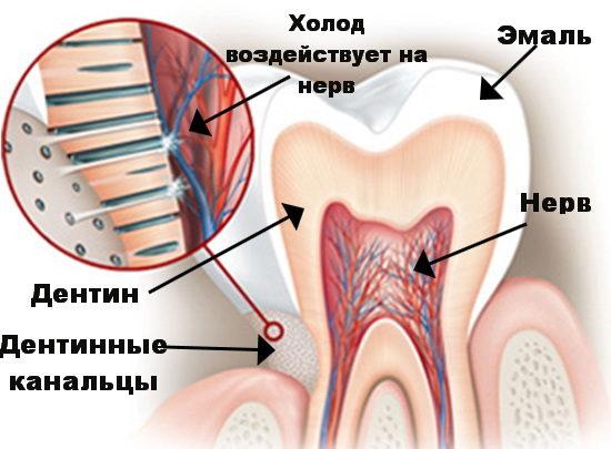Механизм воздействия холода на нерв через дентинные канальцы