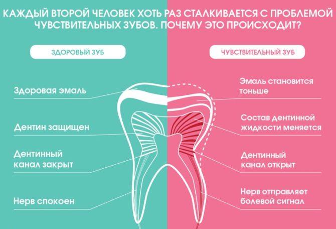 Механизм возникновения боли при гиперестезии