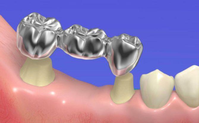 Металлический зубной мост