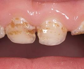 Молочные гнилые зубы