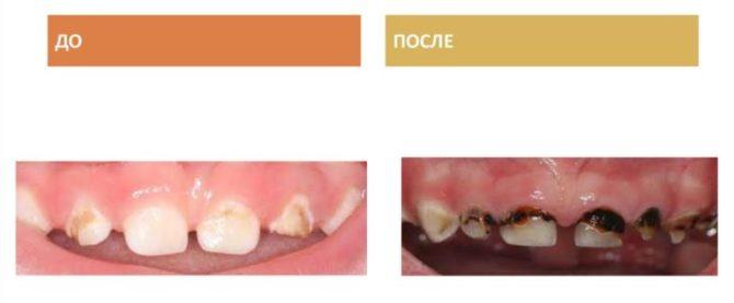 Молочные зубы до и после серебрения