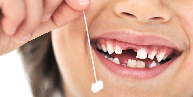 Молочный зуб сменяется коренным