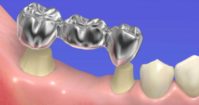 Можно ли лечить зуб мудрости или удалять
