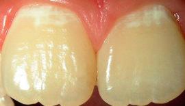 Начальный кариес на зубах