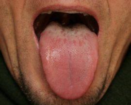 Налет на языке при гастрите