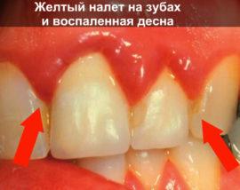 Налет на зубах и воспаленные десны