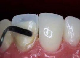 Нанесение на зуб композитного материала