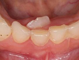 Неправильный рост коренного зуба
