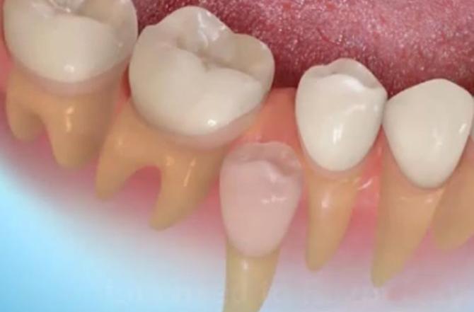 Неправильный рост постоянного зуба при недостатке места в зубном ряду