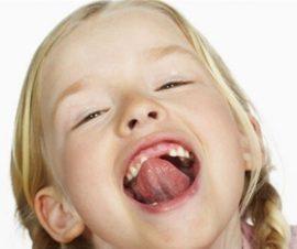 Нормальная уздечка во рту у ребенка