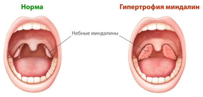 Нормальные миндалины и увеличенные