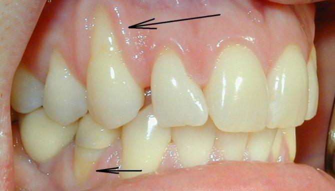 Обнаженные корни зуба