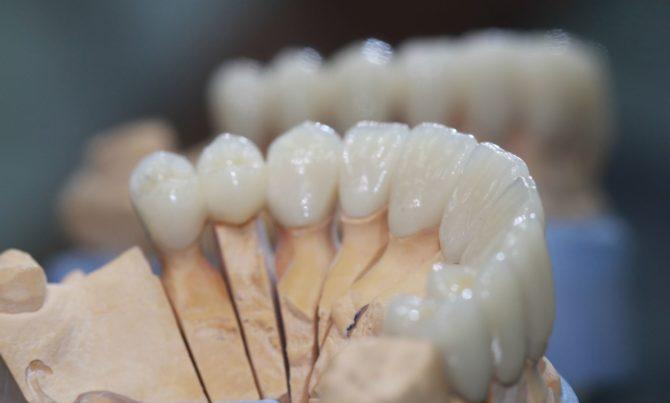 Образцы коронок из диоксида циркония