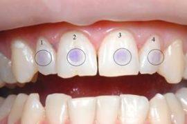 Окрашивание зуба для идентификации кариозного пятна