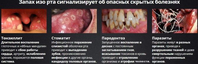 Опасные причины галитоза