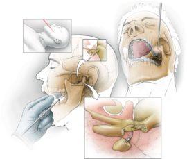Операция по восстановлению тройничного нерва