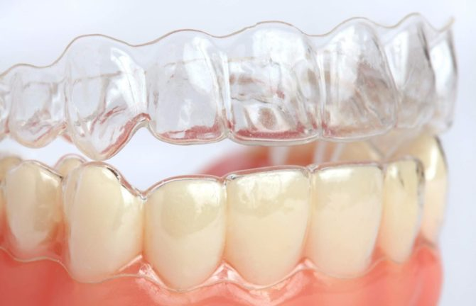 Ортодонтическая капа на зубах