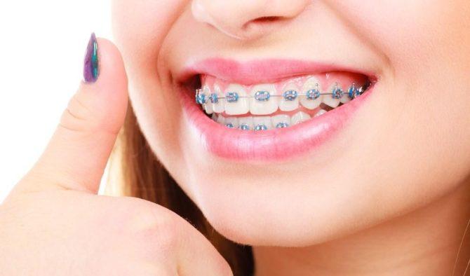 Ортодонтическое лечение пародонтита