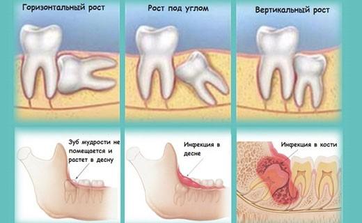 Осложненный рост зуба мудрости