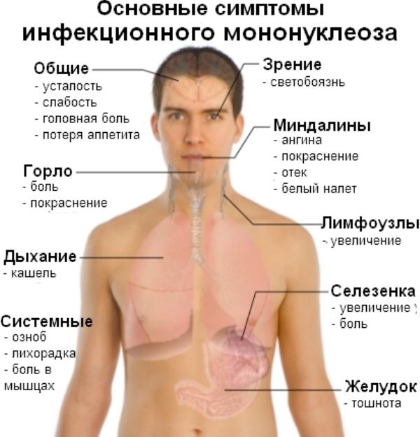 Основные симптомы инфекционного мононуклеоза