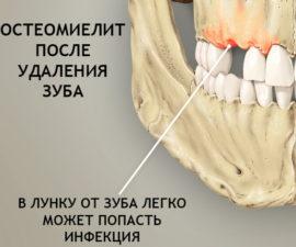 Остеомиелит после удаления зуба