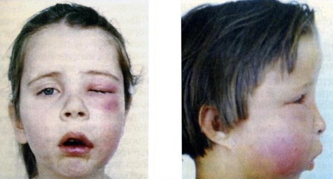 Острый одонтогенный остеомиелит у ребенка