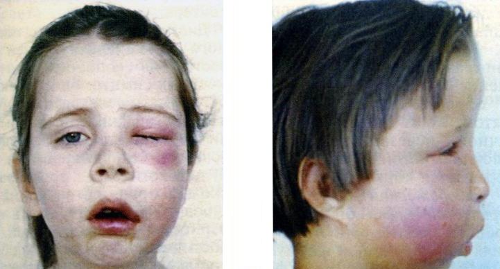 Остеомиелит нижней и верхней челюсти: симптомы, лечение ...