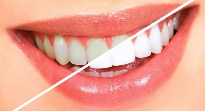Отбеливание зубов - до и после