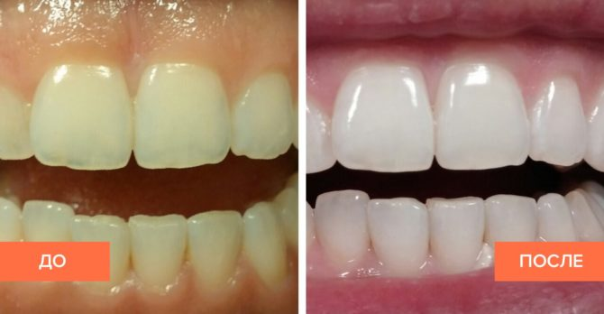 Отбеливание зубов: фото до и после