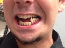 Открытый перелом челюсти со смещением
