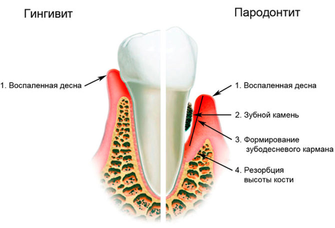 Отличия симптоматики гингивита и пародонтита