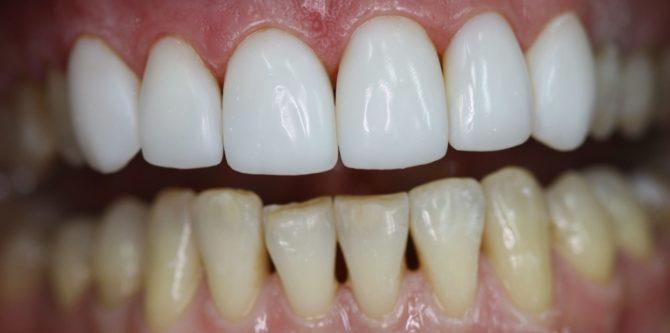 Отреставрированные зубы верхней челюсти