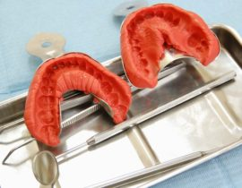 Оттиск зубов