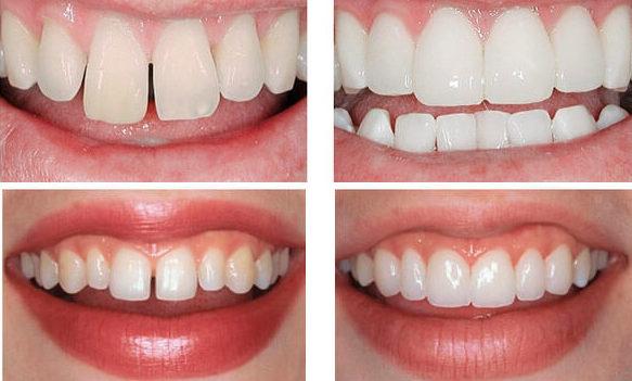 Передние верхние зубы до и после установки коронок