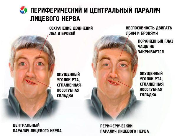 Периферический и центральный паралич лицевого нерва